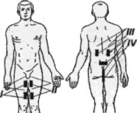 Поясничный вертебральный синдром лечение